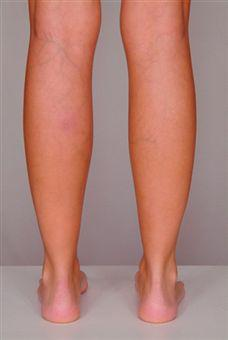 painful spider veins