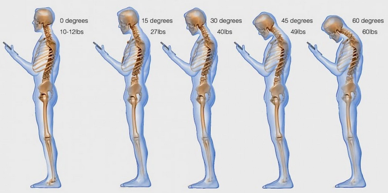 One major cell phone health risk is text neck.