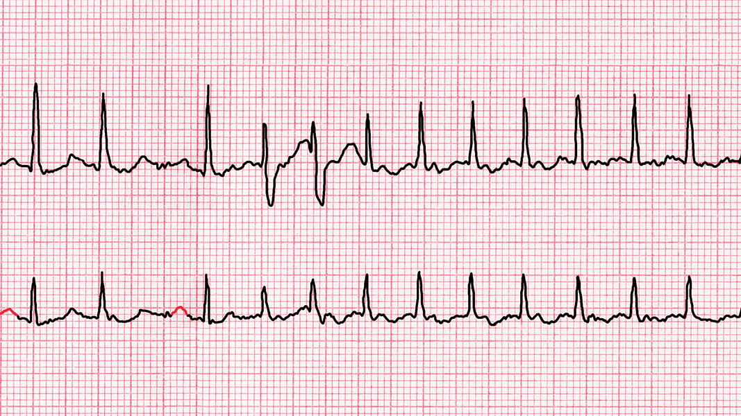 Sometimes I have an irregular heartbeat. Should I be worried?