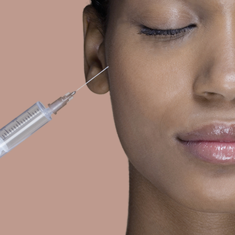 Fillers for acne scars