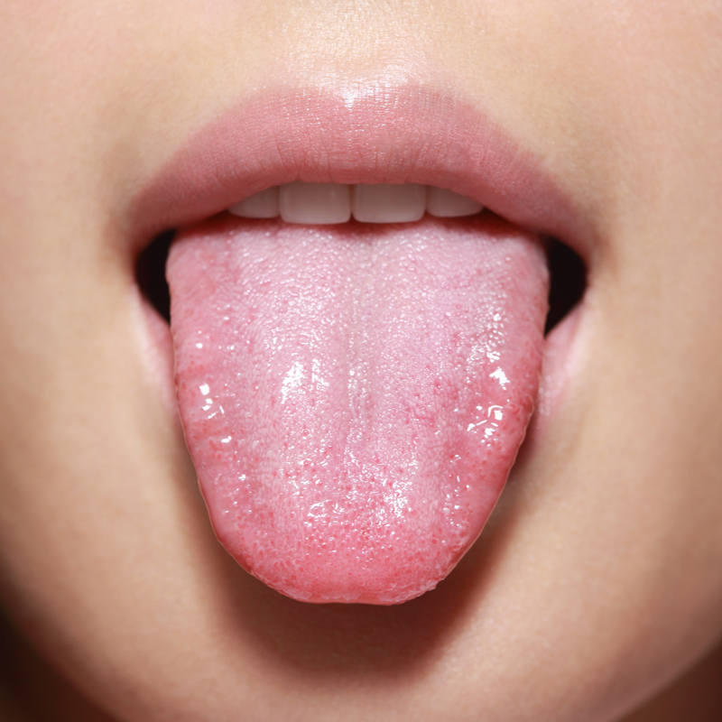 What Your Tongue Can Tell You About Your Health Chatelaine