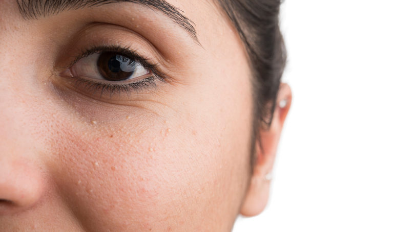 A close-up of a woman's eye showing milia for an article on how to get rid of milia.
